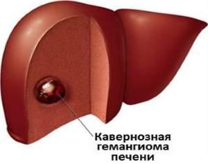 кавернозная гемангиома
