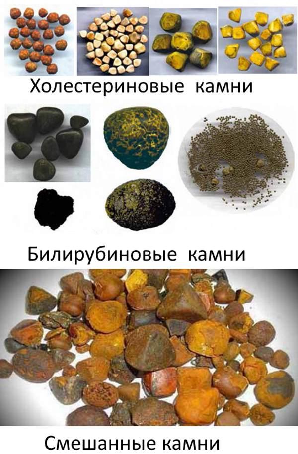 виды камней