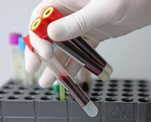 биохимия крови