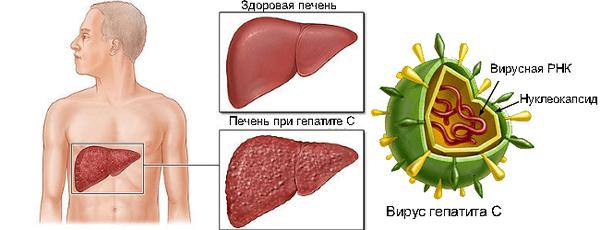 Фаза репликации при гепатите с что это