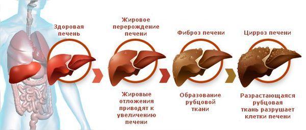 повреждение печени