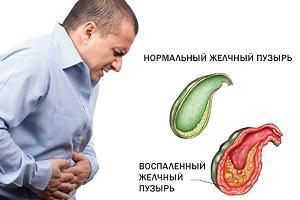 сравнение здорового желчного пузыря и воспаленного