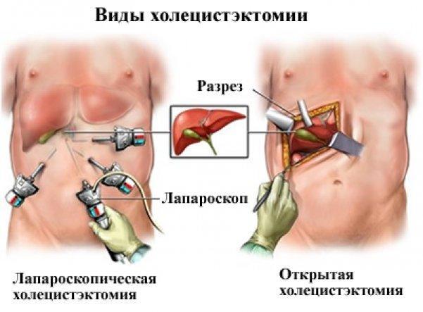 виды холецистэктомии при лечении желчного пузыря