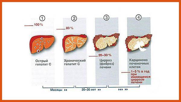изменения в печени при гепатите