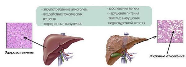 причины гепатоза