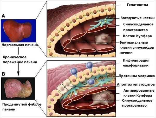 возникновение фиброза печени