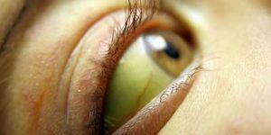 глаз человека при желтухе
