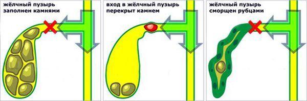 нарушение функций желчного