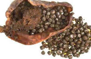 желчный пузырь с камнями