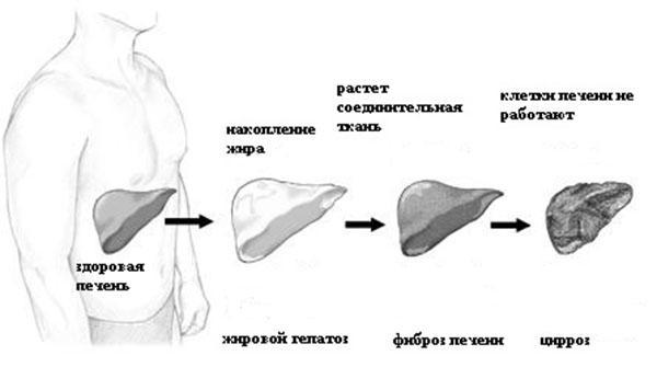 последствия гепатоза