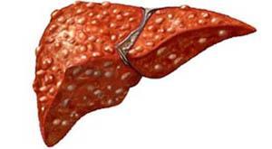 Гепатит б лечится или нет