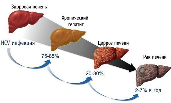 стадии деградации печени