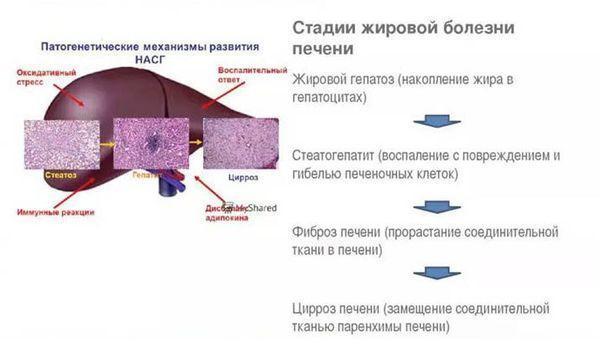 стадии жировой болезни печени