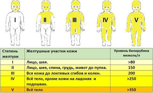 степени желтухи