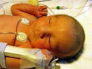 физиологическая желтушка новорожденных