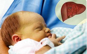 желтуха у недоношенного ребенка