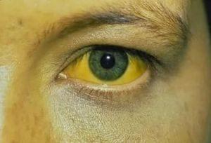 белок глаза при желтухе