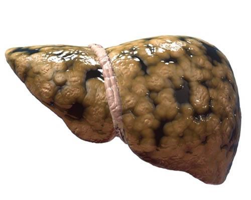 жировая инфильтрация печени