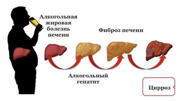 стадии алкогольной болезни печени