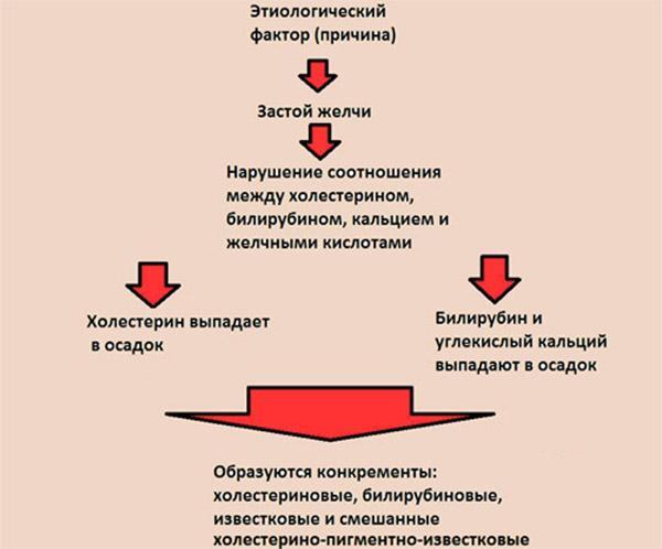 механизм образования камней
