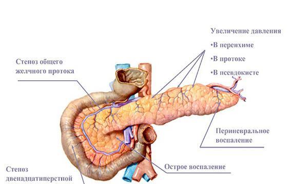 боли при панкреатите