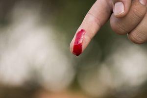 палец с кровью