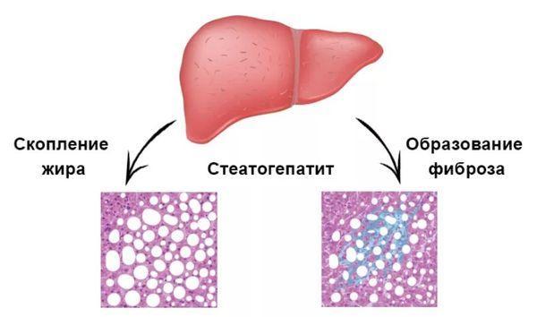 неалкогольный стеатогепатит