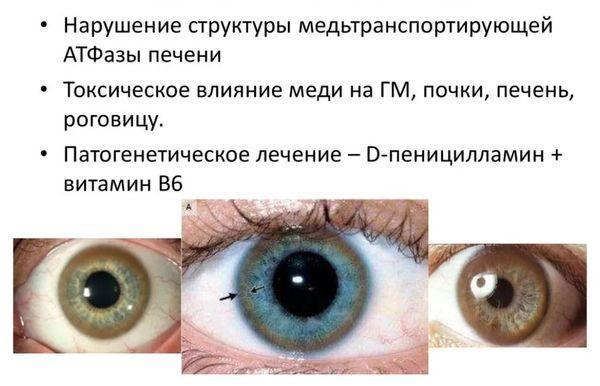 болезнь Вильсона-Коновалова