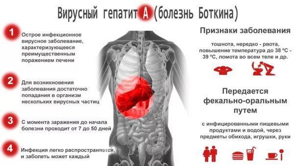 болезнь Боткина