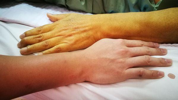 желтая рука