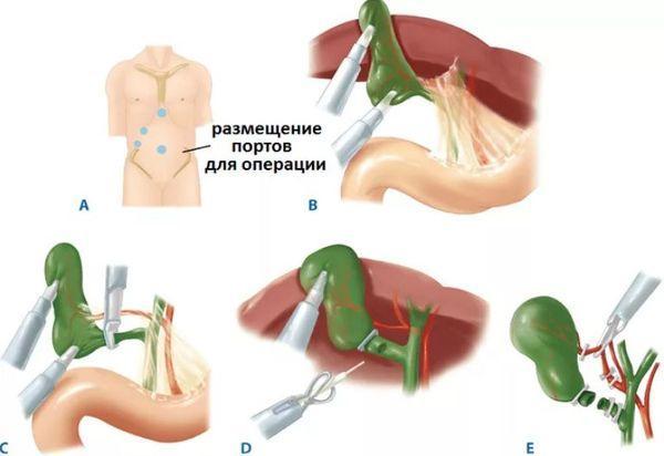 лапароскопическая холецистостомия
