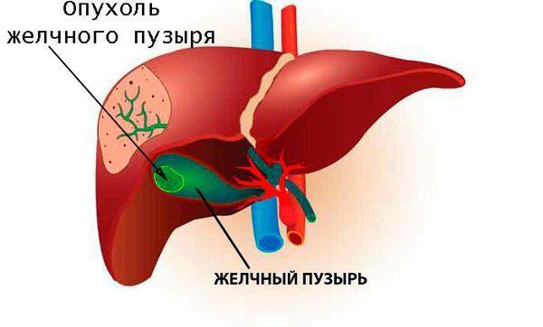опухоль в желчном пузыре