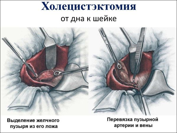 холецистэктомия желчного пузыря