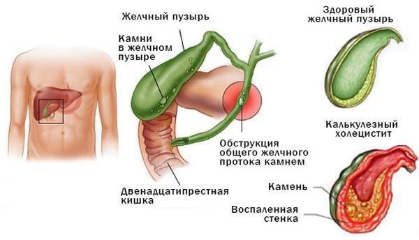 патологии желчного пузыря