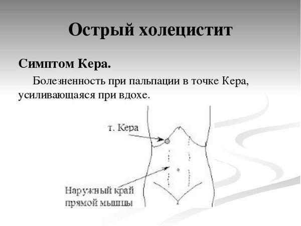 точка Кера
