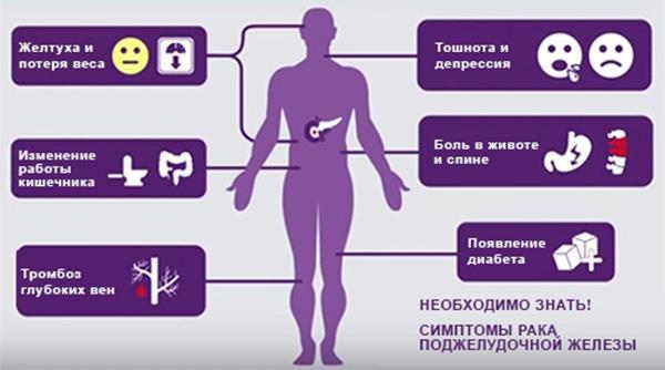 симптомы рака поджелудочной