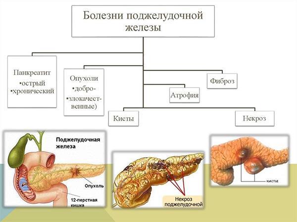 болезни поджелудочной