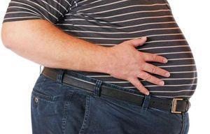ожирение у мужчины