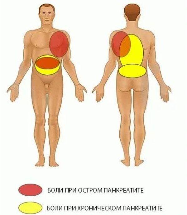 локализация болей при панкреатите