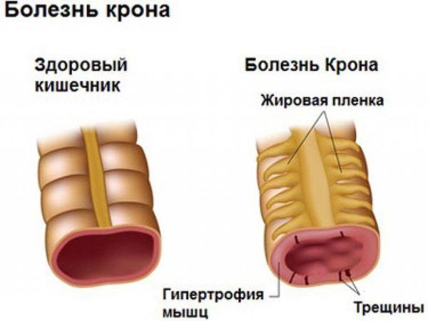 болезнь крона