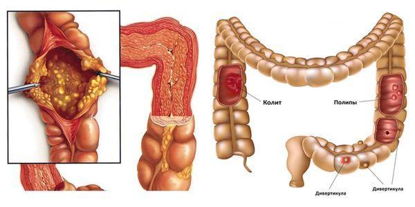 заболевания толстого кишечника