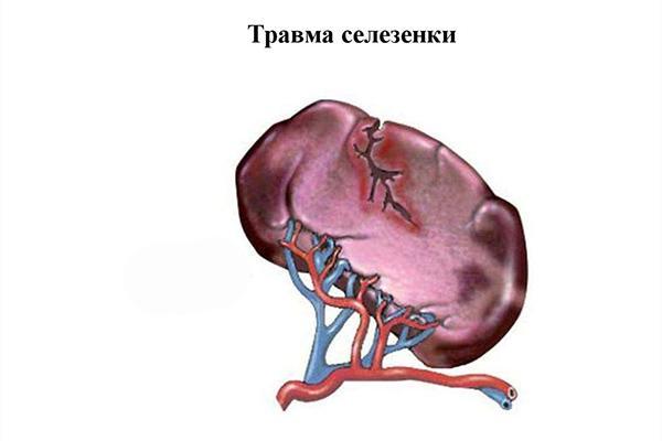 травма селезенки